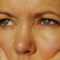 ridurile-tratamente naturiste(wrinkles-natural treatments)