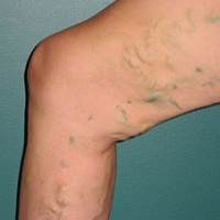 Varice-tratamente naturiste (Varicose veins-natural treatments)