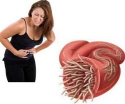 viermi intestinali tratamente naturiste